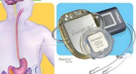 Инновационная система для похудения одобрена для использования