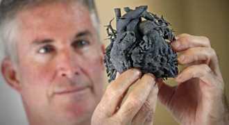 Врачи напечатали 3D сердце, чтобы спасти 4-летнюю малютку